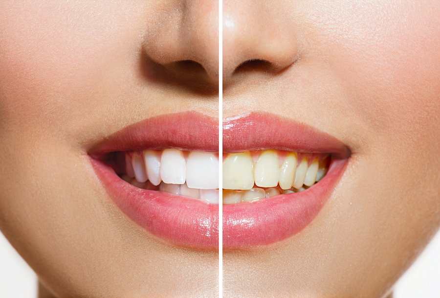 Teeth Whitening Procedures What You Need To Know Dentist In